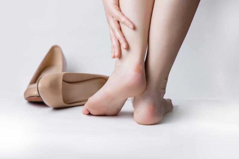 ayakkabı vurmasına doğal çözümler